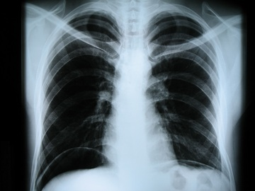 Утилизация рентгеновских пленок
